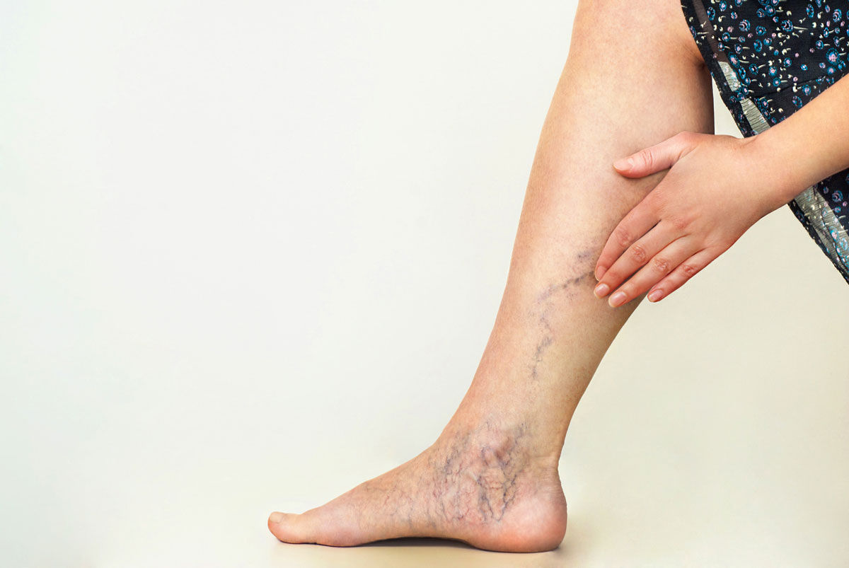 Reduce the Risk of Varicose Veins With the Help of Great Home Remedies