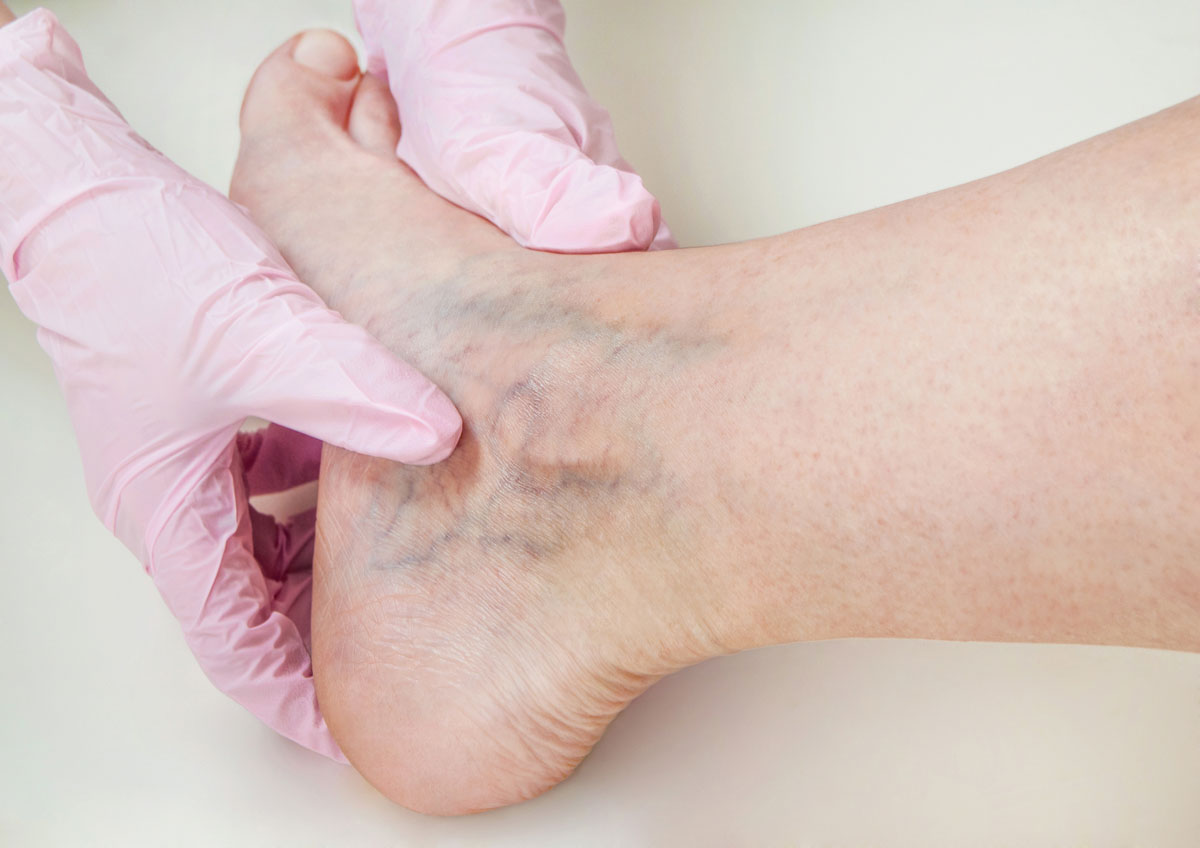Signs of Vein Disease