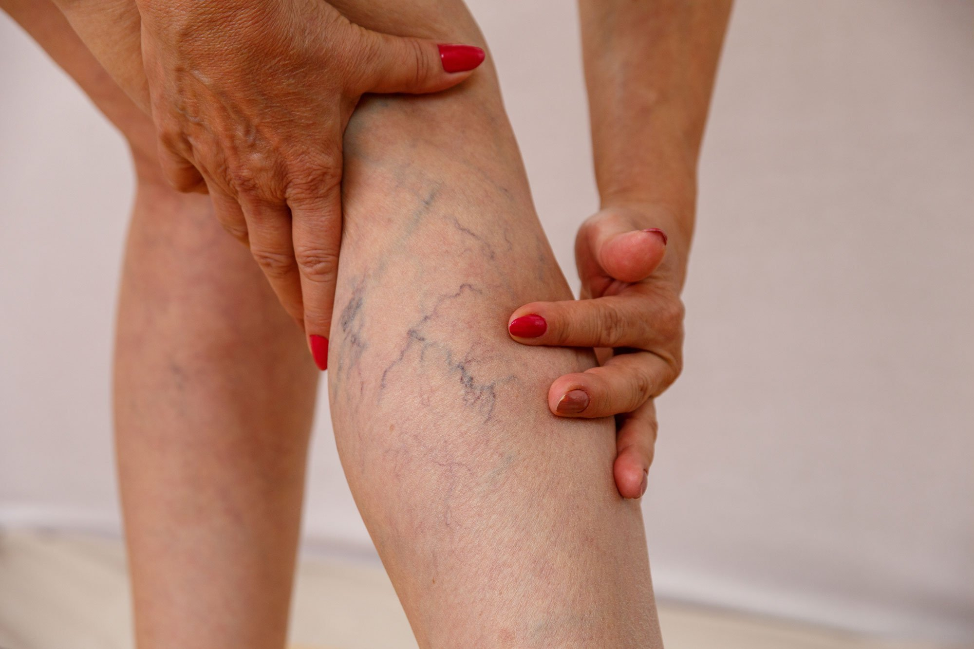 Do Spider Veins Go Away