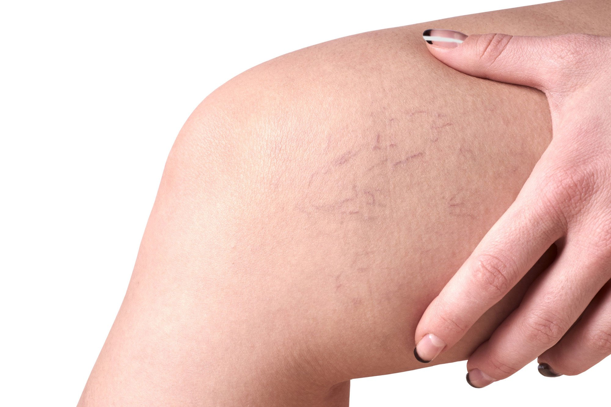 Risks of Untreated Spider Veins