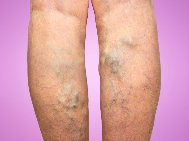 Hereditary Varicose Veins